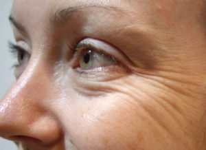 Red light therapy for wrinkles